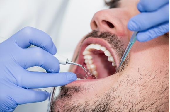 Cervicofacial emphysema after a dental hygiene procedure: a case